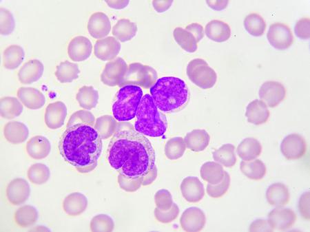leucemia: Las células de leucemia en frotis de sangre periférica Foto de archivo