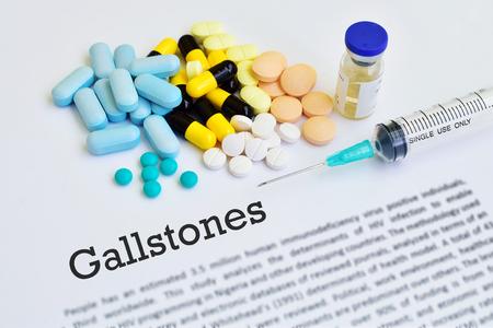 gallstones: Gallstones treatment