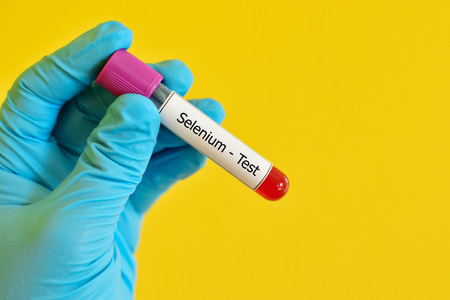selenium: Blood sample for selenium test Stock Photo