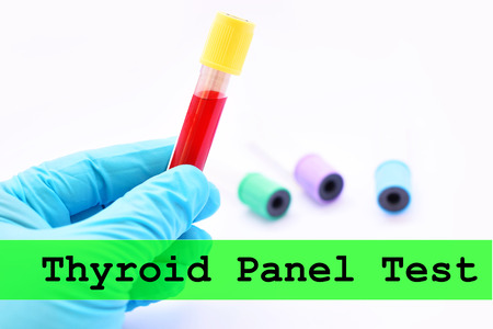 Blood for thyroid test