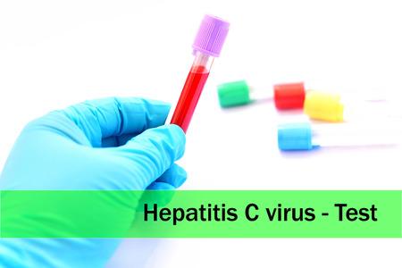 Hepatitis C virus test