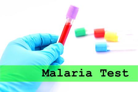 parasite: Blood sample for malaria parasite test