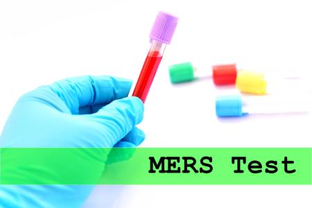 Blood sample for MERS virus test