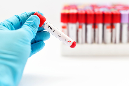 HAV positive blood sample Stock Photo