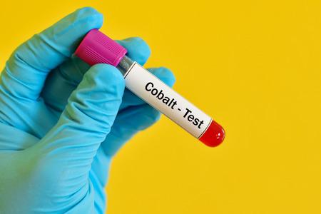 Blood sample for cobalt test