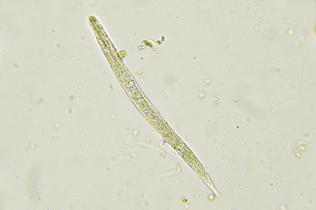 protozoa: Strongyloides stercoralis in stool Stock Photo