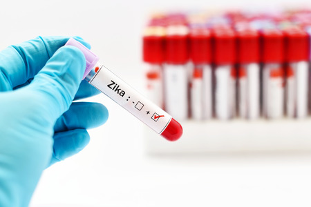 hemorrhagic: Blood sample positive with Zika virus