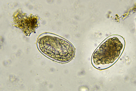 fecal: Eggs of Hookworm in stool