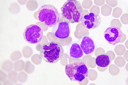 leucemia: Células leucocitarias en frotis de sangre