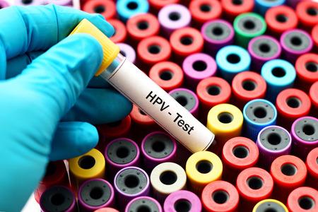 Prueba de sangre para el VPH Foto de archivo - 72163360