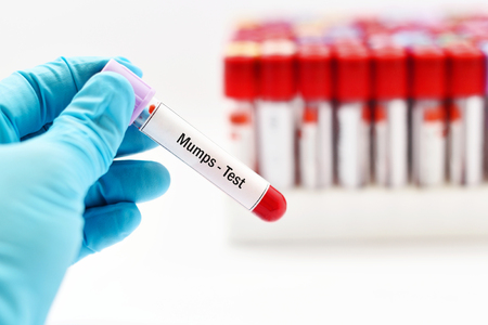 micro organism: Blood for mumps virus test Stock Photo