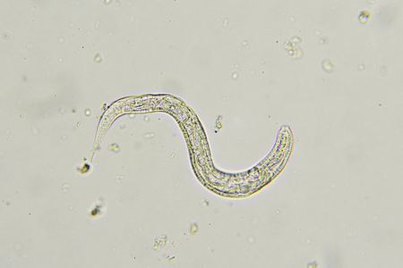fecal: Strongyloides stercoralis (threadworm) in stool Stock Photo