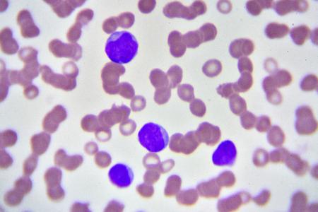 leukemia: Leukemia cells in blood smear Stock Photo