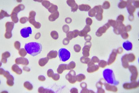 Leukemia cells in blood smear 版權商用圖片