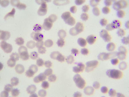 Red blood cells infected with malaria parasite