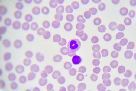 basophil: White blood cells in in blood smear