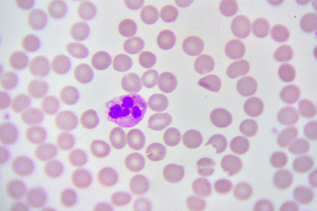medical laboratory: Neutrophil cell in blood smear