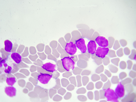 Leukemia cells in blood smear Stock Photo