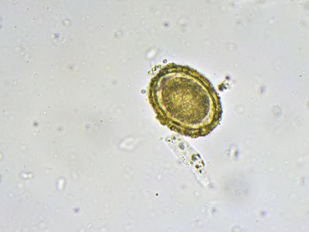 Egg of Ascaris lumbricoides in stool Stock Photo