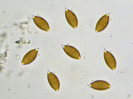 발판에 Trichuris trichiura의 달걀