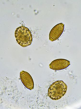 fecal: Eggs of helminthes in stool, analyze by microscope Stock Photo
