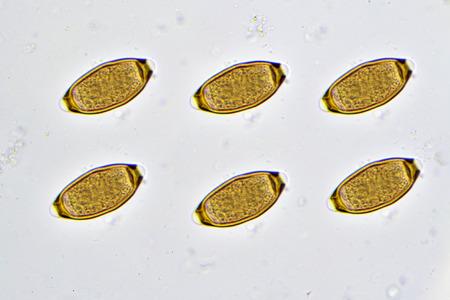 Eggs of Trichuris trichiura (whipworm) in stool Stock Photo