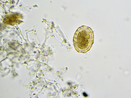 Egg of Ascaris lumbricoides (roundworm) in stool Stock Photo