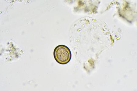 Egg of Taenia in stool Stock Photo