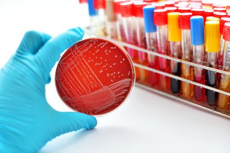 Colonies of bacteria in blood agar Stockfoto