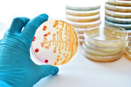 Las colonias de bacterias en placa de Petri Foto de archivo - 80172852