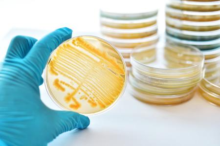 Las colonias de bacterias en placa de Petri Foto de archivo - 80172854