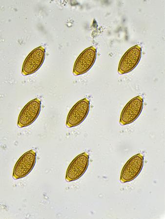 Eggs of Trichuris trichiura in stool