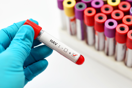 Blood sample positive with hepatitis A virus Stock Photo