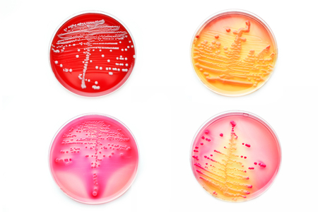 Mixed of bacteria colonies in petri dish