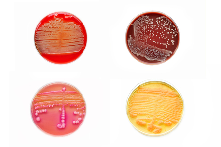 Bacteria colonies in various petri dish