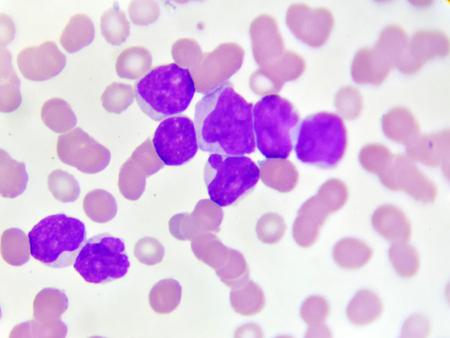 Blood picture of acute myeloid leukemia (AML)