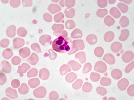 Neutrophil cell in blood smear