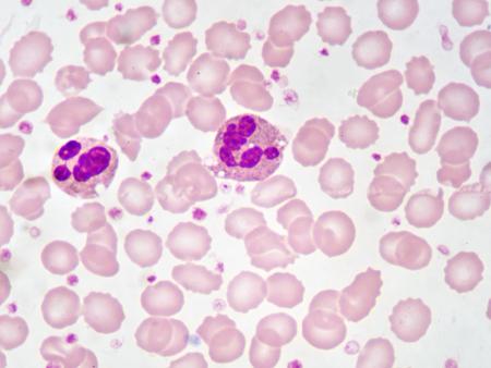 Neutrophil cells in blood smear