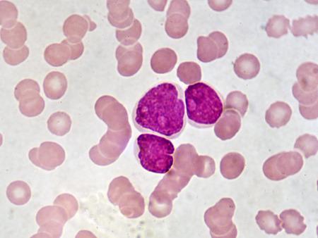 Leukemia cells in blood smear Stock Photo