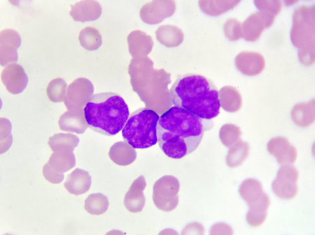 Blood picture of acute myeloid leukemia