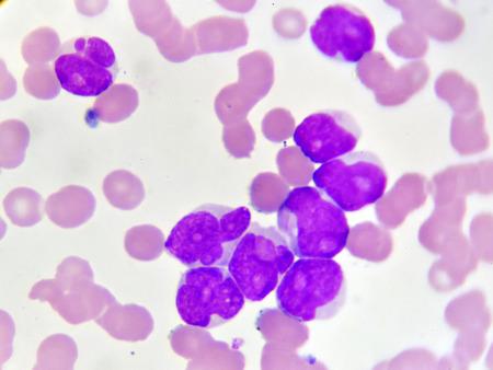 急性骨髄性白血病の血液画像