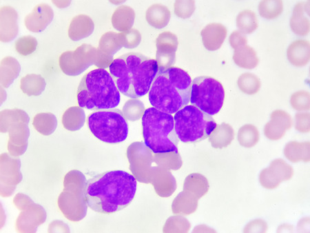 Blood picture of acute myeloid leukemia