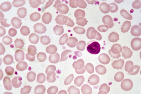 Lymphocyte cell in blood smear