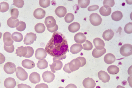 Eosinophil cell in blood smear Stock Photo