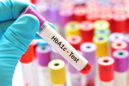 Blood sample for HbA1c test, diabetes diagnosis Stock Photo