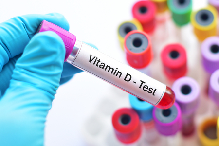 malnutrition: Blood sample for vitamin D test Stock Photo