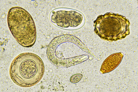 Eggs of helminthes in stool, analyze by microscope Stock Photo