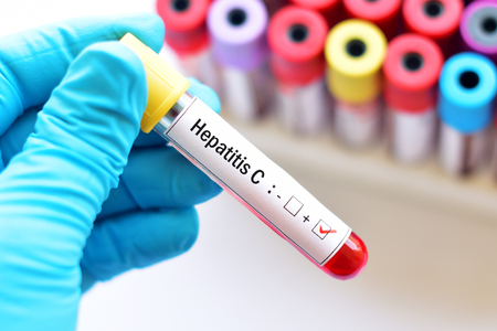 Hepatitis C virus positive Stock Photo
