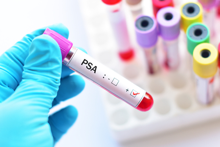 specific: Blood sample positive with PSA