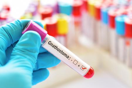 Blood sample positive with Gnathostoma parasite